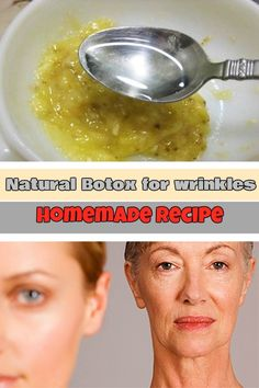 Natural Botox for wrinkles: Homemade recipe - WeLoveBeauty.org