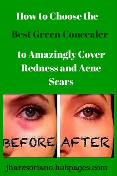 Achieve that flawless, beautiful skin by perfectly covering your skin imperfections (redness, dark circles, pimple scars, etc.) by properly using a green concealer that gives very good results.