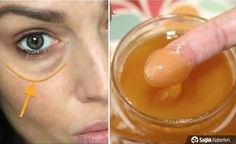 This Mixture Will Remove Dark Circles And Eye Bags In Just 15 Minutes! - - - In a list of the skin problems dark circle comes in top 5 issues. Millions of pe. Dark Circles Under Eyes, Dark Under Eye, Diy Beauty, Beauty Skin, Health And Beauty, Beauty Style, Homemade Beauty, Beauty Ideas, Beauty Hacks For Teens