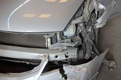What Are the 5 Most Common Injuries in Drunk Driving Crashes? Insights from a Detroit Car Accident Lawyer