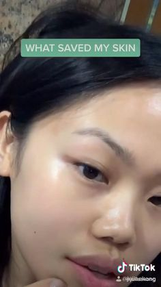 Evolved Skin peeling solution made with highest quality Alpha hydroxy acids a fluid that exfoliate the skins topmost lay Beauty Tips For Glowing Skin, Clear Skin Tips, How To Clear Skin, Skin Care Routine Steps, Skin Care Tips, Clear Skin Routine, Haut Routine, Face Skin Care, Face Face