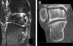 (A) T2 MRI and (B) CT of chronic talar OLT. Note the vastly improved bone detail on CT in subacute lesions