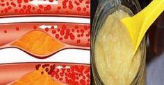 Υγεία - Πάρτε 4 κουταλιές της σούπας αυτό κάθε πρωί για λίγες ημέρες και πείτε αντίο σε φραγμένες αρτηρίες, υπέρταση, και την κακή χοληστερόλη!Αυτό το απίστευτο ρό