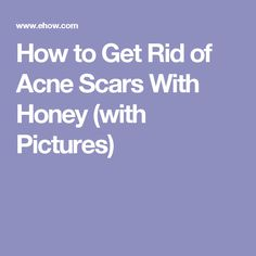 How to Get Rid of Acne Scars With Honey (with Pictures)