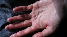 Natural Remedies for Sweaty Palms « I Told You I Was Sick Sweaty Hands, Plus Jamais, Sensory Processing Disorder, Body Lotions, Diy Skin Care, Natural Medicine, Natural Cures, Health Problems, Home Remedies