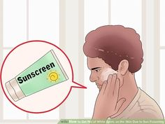 How to Get Rid of White Spots on the Skin Due to Sun Poisoning Dark Skin Tone, Even Skin Tone, Sun Spots On Skin, Broad Spectrum Sunscreen, Vitamin E Oil, Dandruff, How To Get Rid, Beauty Secrets