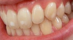 """""""MY TEETH HAVE WHITE SPOTS. WHAT ARE THEY AND WHAT CAN I DO?""""  If your teeth have white spots on the surface of the enamel, you likely have a condition called enamel hypoplasia. Those white spots on your teeth are more than just unattractive—they can actually increase your risk for tooth decay! Contact our Consultant for a detailed assessment and review. Smile Line - Specialist Dental Surgery  22/2 Main Infantry Road,  Near Fortress Stadium and CMH Lahore Cantt 0344 4646707"""