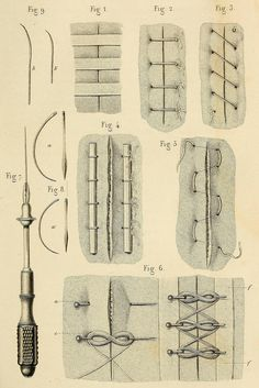 Wound closure techniques ca. 1855.      Fig 1. Closure of the wound without sutures, using adhesives and cloth.     Fig 2 & 3. Simple interrupted and uninterrupted suture.     Fig 4. Interfolded suture, with stabilizing rods.      Fig 5. Continuous horizontal mattress suture.     Fig 6. Twisted suture.      Fig 7. Suture needle holder.     Fig 8. Curved suture needles.      Précis iconographique de Médecine Opératoire et d'Anatomie Chirurgicale. Drs. Bernard and Huette, 1854.