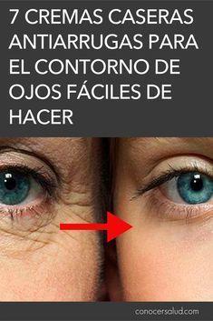 ¿Puede una infección sinusal hacer que los ojos se hinchen
