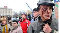 A victim of police brutality in Kiev looks on as others continue to riot.