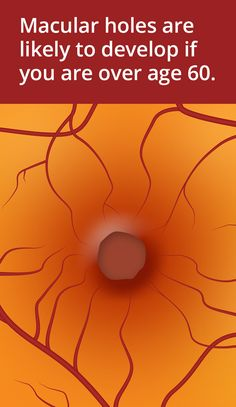 15 Best Macular Hole Images Macular Hole Surgery