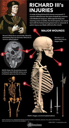 """A study of the Medieval king's skeleton reveals traumatic wounds he received at the time of death. (<a href=""""http://www.livescience.com/47871-richard-iii-fatal-wounds-infographic.html"""">See full infographic</a>)"""