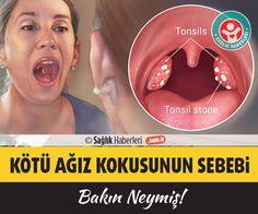 Ağız kokusunun asıl nedeni bakın neymiş‼️ Hem kişiyi, hem de çevresini rahatsız eden, aile ve sosyal hayatı etkileyen ağız kokusunun kaynağı ne olabilir? Bu yazımızda ağız kokusunun asıl nedenini açıklıyoruz.. #ağızkokusu #halitosis #sağlık #saglik #sağlıkhaberleri #health #healthnews