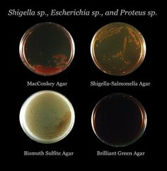 Four different types of agar plates showing differential growth depending on bacterial metabolism. Medical Laboratory Science, Forensic Science, Science Humor, Science Fair, Life Science, Biology Projects, Biology Art, Teaching Biology, Microbiology Humor