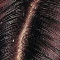 Dry scalp is an over shedding of dead dehydrated skin cells of the scalp caused … – dandruff causes What Causes Dandruff, How To Treat Dandruff, Home Remedies For Dandruff, Itchy Scalp, Dry Scalp, Dry Skin, Coiffure Hair