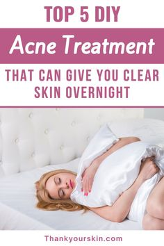 Here are 5 acne remedies that may be used overnight to help you get clear skin faster. Take a look at it.#best acne remedies #help with acne #quick acne remedies