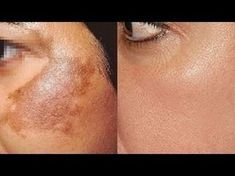 Hyperpigmentation of the skin can cause uneven color and dark patches. Excessive production of melanin is responsible for this condition. Hyperpigmentation can occur on almost any part of the body, including the face, neck, hands, arms and legs. The root Skin Tips, Skin Care Tips, Age Spots On Face, Skin Spots, Pele Natural, Natural Skin, The Face, Skin Care Remedies, Natural Remedies