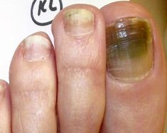 Toenail-Fungus You can get more information about nail care at Purifythis.com
