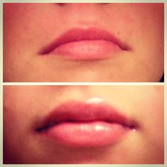 Before and after photos Juvederm filled lips