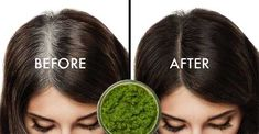 Doctors are speechless – Apply this on your hair and they will never turn white