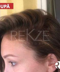 63 Șampon Susține Creșterea Părului Și Stopează Căderea Părului