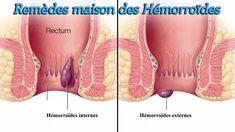 Hémorroïdes : remèdes maison pour réduire l'inconfort