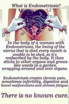 Endometriosis- for those who don't understand. ________________________ Chronic illnesses ~~~~ You can't just talk to us as if we were normal people. We aren't. ~~~~~~~~~~~Who lives in a cage? _____________________________ Dr Margaret Aranda Twitter/@medibasket