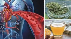 Remedies For Blood Circulation Your blood does a fantastic job of transporting nutrients and oxygen to every part of your body, so if you have a problem with your circulatory system, it can affect your overall health. Improve Leg Circulation, Poor Circulation, Tree Spinach, Medical Intuitive, Cold Treatment, Thyroid Problems, Circulatory System, Natural Health Remedies, Health And Beauty Tips