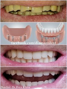 Bar Overdenture- New Smile, new life 🙂 Have a Bright smile! Dental Bridge,Crown… Bar Overdenture- New Smile, new life :] Have a Bright smile! Smile Dental, Dental Life, Smile Teeth, Dental Bridge Cost, Tooth Crown, Wisdom Teeth, Teeth Whitening, Tooth Bridge, Front Teeth