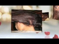 Diary of A Female Black Hair Loss Treatment Journey - http://hairregrowthnews.com/diary-of-a-female-black-hair-loss-treatment-journey/