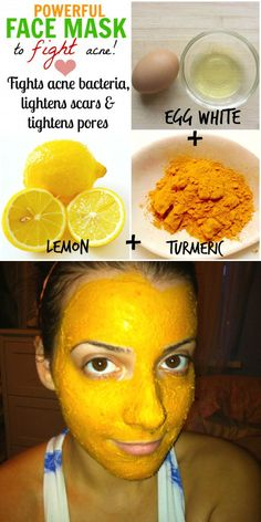 Face masks against pimples