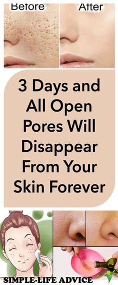 Helpful Tips For Skin Care And Health – Fashion Trends Skin Tags On Face, Nose Pores, Skin Care Routine For 20s, Unclog Pores, Homemade Skin Care, Skin Problems, Skin Tightening, Healthy Skin, Portrait