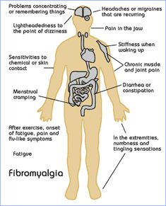 All the different parts of the body Fibromyalgia effects