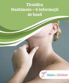 Tiroidita Hashimoto – 6 #informații de bază #Deși nu există niciun leac pentru tiroidita Hashimoto, diagnosticarea timpurie și un tratament #adecvat te pot ajuta să ții boala sub control și să previi complicațiile. Citește în continuare și ia #aminte! Thyroid, Good To Know, Fitbit, Healthy, Varicose Veins, Thyroid Gland, Health