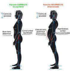 causas hiperlordosis lumbar