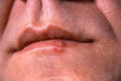 Manchas en la cara herpes