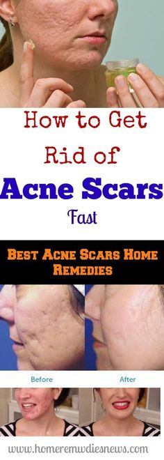 How To Get Rid Of Acne Scars Fast – Best Acne Scars Home Remedies