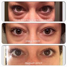 Crows feet? Bags? Puffiness? Find out how to get rid of it all quickly and painlessly with Rodan and Fields Anti aging renewing night serum!