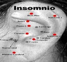 Resultado de imagen para auriculoterapia insomnio