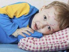 Kinderkrankheiten erkennen mit diesen Bildern