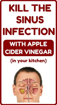 Health Benefits Of Ginger, Apple Cider Benefits, Health Tips, Health And Wellness, Health Fitness, Getting Rid Of Phlegm, Sinus Allergies, Improve Mental Health, Sinus Infection