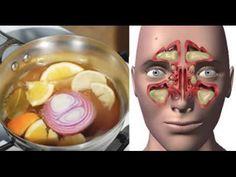 """Este remedio llamado """"La Bomba"""" ataca la congestión nasal y la gripe de manera inmediata"""