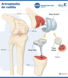 Artroplastia de rodilla #infografia
