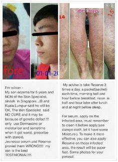 Jeunesse Luminesce testimonial - eczema Skin Specialist, Skin Problems, Rid, Health, Beauty, Youth