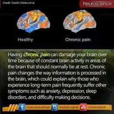 Chronic fatigue syndrome and fibromyalgia often have very similar treatments due to the fact that these two syndromes share a lot of common characteristics. If you are a chronic fatigue syndrome or fibromyalgia patient, the treatments Chronic Fatigue Syndrome Diet, Chronic Fatigue Symptoms, Chronic Migraines, Chronic Tiredness, Best Friend Poems, Chronic Illness Quotes, Complex Regional Pain Syndrome, Ankylosing Spondylitis, Trigeminal Neuralgia