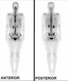 Gammagrafía Pelviespondilitis Reumática