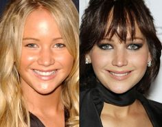 Jennifer Lawrence Nose Job Plastic Surgery Surgeon, Before And After Types Of Plastic Surgery, Body Plastic Surgery, Plastic Surgery Photos, Celebrity Plastic Surgery, Madam Glam, Lip Augmentation, Under The Knife, Cosmetic Procedures, Emilia Clarke