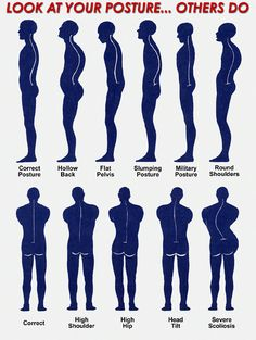 Look at your posture... others do