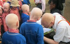The Fight to Stop Tanzania's Witch Doctors Butchering Albino People | VICE Australia / NZ