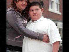 Obesidad infantil.Consecuencias